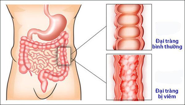Cách phòng ngừa và điều trị viêm đại tràng như thế nào?